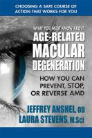 What You Must Know About Age-related Macular Degeneration