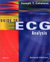 Guide to ECG Analysis