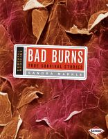 Bad Burns