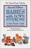 Babies With Down Syndrome