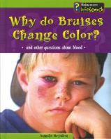 Why Do Bruises Change Color?