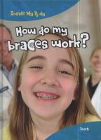 How Do My Braces Work?