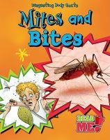 Mites and Bites