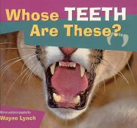 Whose Teeth Are These