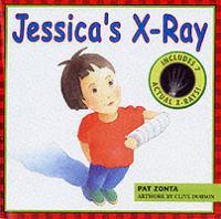 Jessica's X-ray