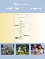 Your Guide to Total Hip Replacement