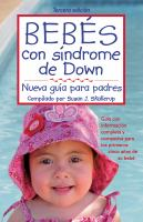 Bebés con síndrome de Down