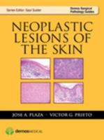 Neoplastic Lesions of the Skin