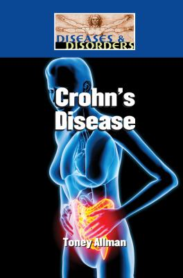 Cover image for Crohn's disease