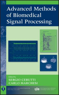 Cover image for Advanced methods of biomedical signal processing
