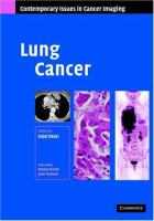 Cover image for Lung cancer