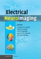 Cover image for Electrical neuroimaging