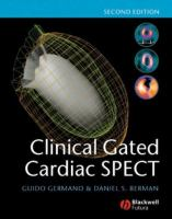 Cover image for Clinical gated cardiac SPECT