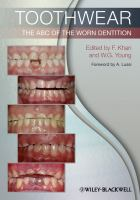 Cover image for Toothwear : the ABC of the worn dentition