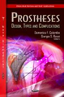 Cover image for Prostheses : design, types, and complications
