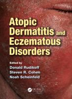 Cover image for Atopic dermatitis and eczematous disorders