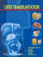 Cover image for Liver transplantation