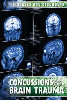 Cover image for Concussions and other brain trauma