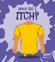 Why do I itch